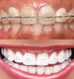 ceramic-braces.png